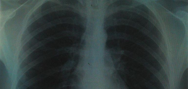 Chronic bronchitis device wins breakthrough designation